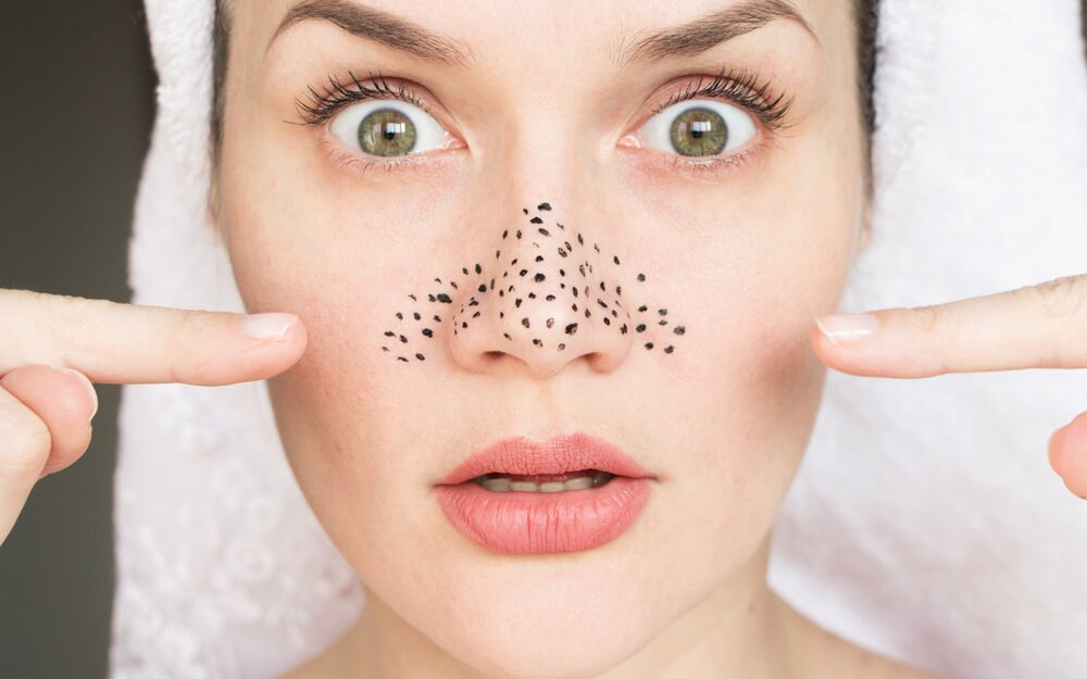 Home Remedies to Remove Blackheads